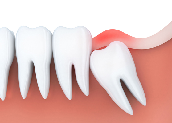 What Is Wisdom Teeth Removal