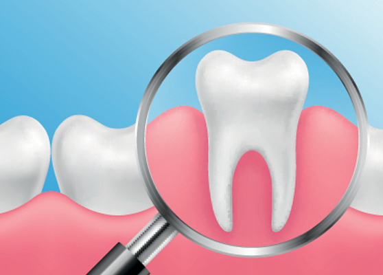 Who Is A Candidate For A Periodontal Scaling And Root Planing