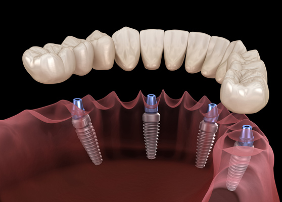 Why Are Implant Supported Dentures Needed