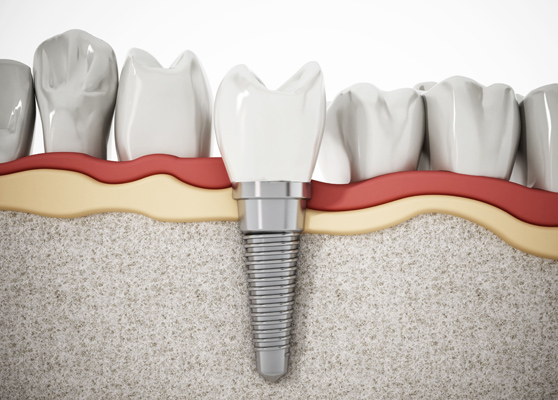 Why Is A Dental Implant Needed