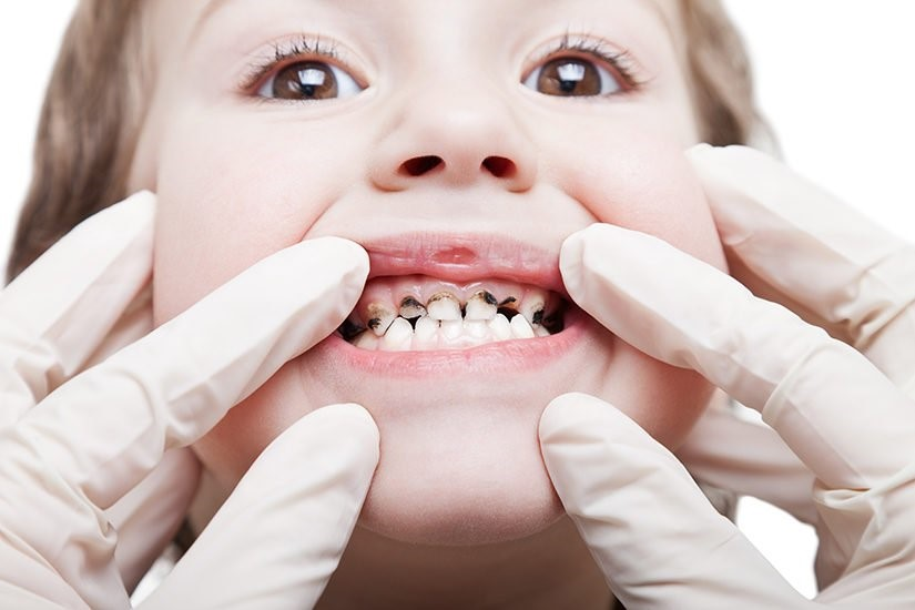 Which Oral Health Problems Are Common Children