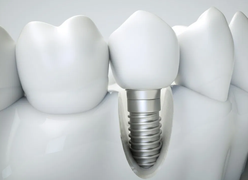 The Step By Step Placement Of Dental Implants With Guided Surgery