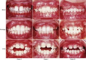 Types And Causes Of Malocclusion